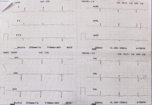 EKG Saat Keluar