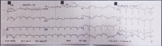 EKG saat masuk